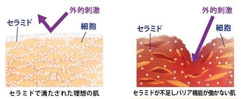 健康な肌とセラミド不足の肌